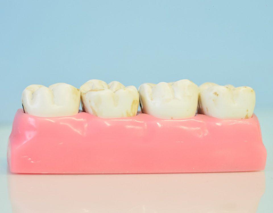 composite pour cabinet dentaire
