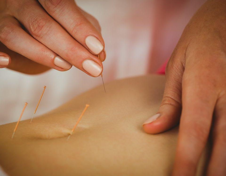 www.ecolezhongli.comformation-en-acupuncture